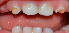 What is important to know about caries of milk teeth in young children