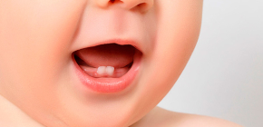 About milk (temporary) bite, as well as teething and changing teeth in children