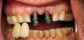 Is it possible to implant teeth with periodontitis and periodontal disease?