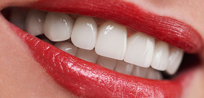Is there non-invasive dental implantation performed without cutting the gums?