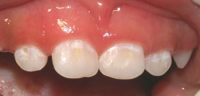 Treatment methods for initial caries in the white spot stage