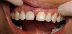 Symptoms of tooth implant rejection: by what signs to recognize the problem?