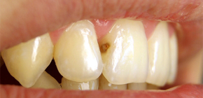 What to do if caries appeared on the front teeth