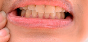 What can be done at home to relieve severe toothache
