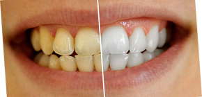 How can you whiten your teeth at home without harm to enamel