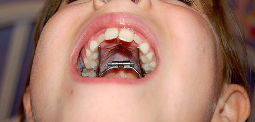 Orthodontic appliances for correcting bite in children