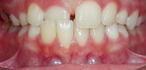 On cross-bite and approaches to its treatment in children and adults