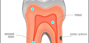 Cement caries: from clinical manifestations to modern treatment methods