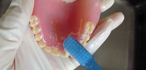 Terms of care for removable dentures