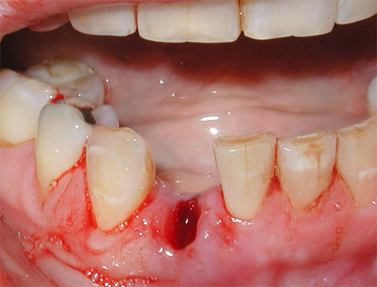 How long does the gum heal after tooth extraction and can