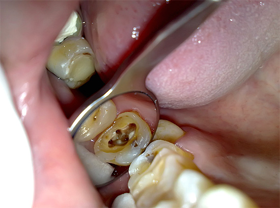 Each of the root canals should be thoroughly cleaned of residual pulp.