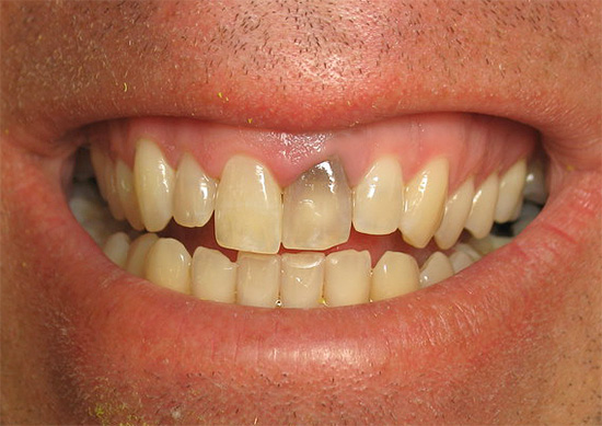 Sometimes after treatment of pulpitis, the tooth may darken greatly.