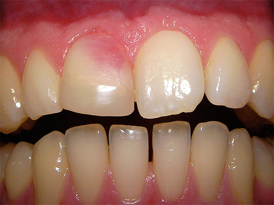 And here is an example of a pink tooth, the color of which appeared due to the use of resorcin-formalin paste for canal treatment.