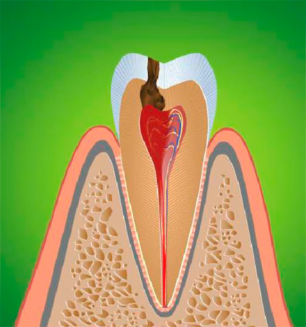Inflammation of the dental nerve leads to pulpitis, which is usually accompanied by acute pain.