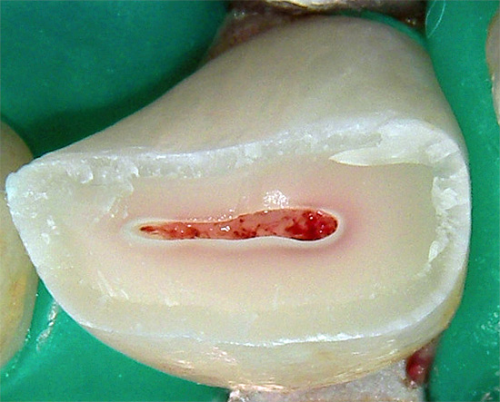 The photo shows a broken tooth - it will also have to remove a nerve from it.