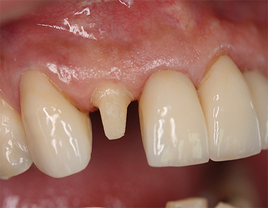 When preparing a tooth for a crown, it is often pre-depulped, but is it always necessary? ..