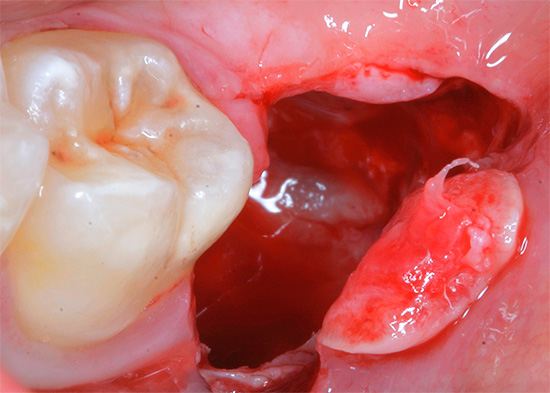 Removing a wisdom tooth in the lower jaw (8) and the