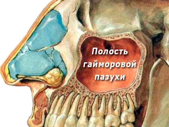 extraction of a wisdom tooth in the upper jaw 8 as well as a couple of words about 6 and 7