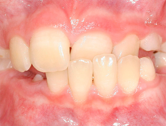 There are many different types of teeth bite anomalies - we will talk about them later and talk ...