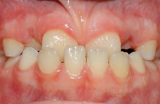 Mesial occlusion (3rd class of occlusion anomaly according to Angle's classification).