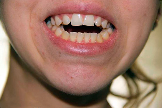 Often, with an open bite, closing the mouth completely is problematic.