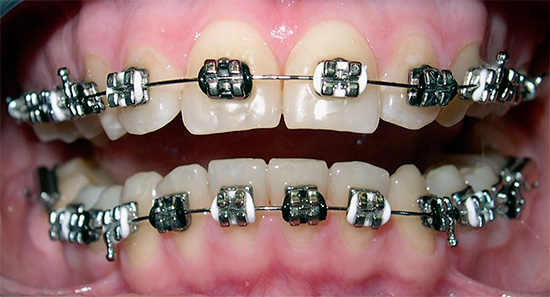The photo shows metal braces.