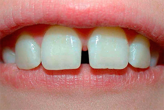 The photo shows an example of a middle diastema.