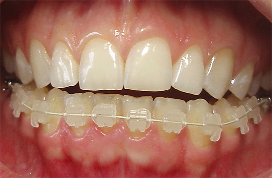 An example of ceramic braces