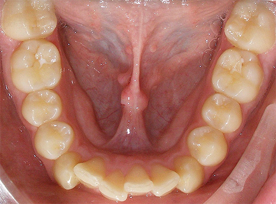 One of the most common abnormalities of the bite is crowded teeth.