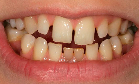 The cause of the appearance of three (gaps) may be microdentia - the small size of individual teeth in a row.