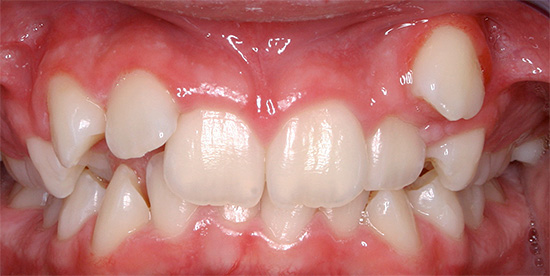 Sometimes a tooth may erupt in an atypical place for it, which ultimately leads to the formation of a bite defect.