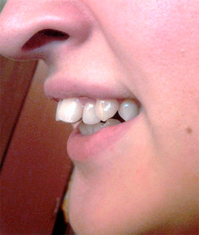 An example of a distal bite when the upper incisors are inclined towards the lip.
