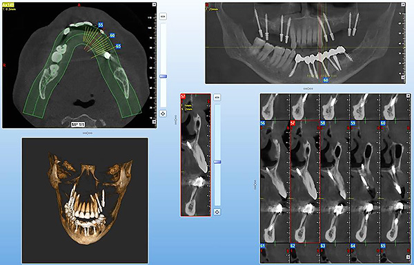 Computer modeling with basal implantation allows to achieve the most accurate positioning of implants, even in the most difficult cases, minimizing the likelihood of medical errors.