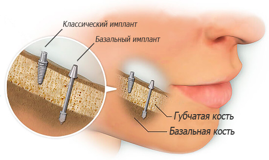 The basal implants are placed in the dense basal jaw bone.