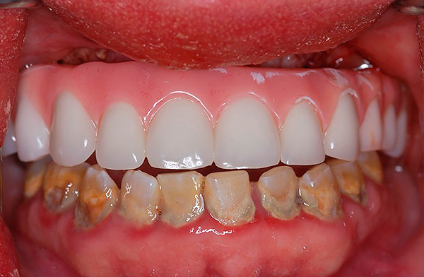 Prosthetics on basal implants are possible even if the patient has severe forms of periodontitis and periodontal disease.