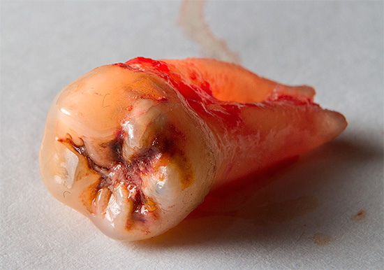 Often, the dentist-surgeon, after the extraction of the tooth, also sets the implant.