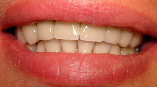 With proper oral care, metal ceramics can serve you for more than 10 years, and possibly a lifetime.