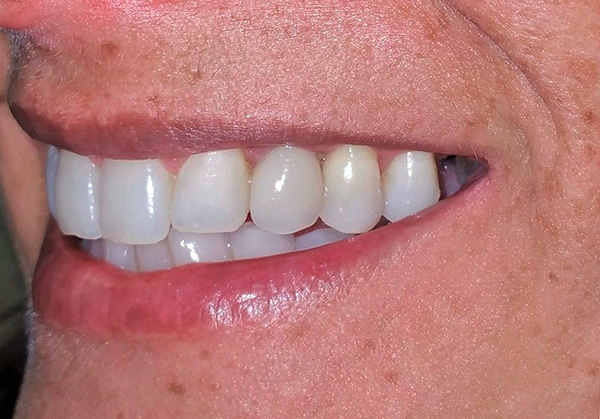 No matter how they argue about the pros and cons of basal implantation, in many cases it really is a good way to quickly regain a beautiful smile.