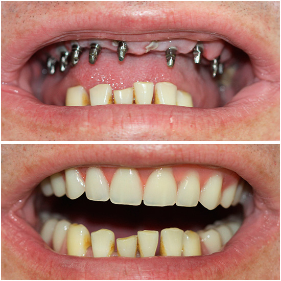 Basal implantation has really a lot of advantages - for example, it allows you to quickly return a beautiful smile to a person.
