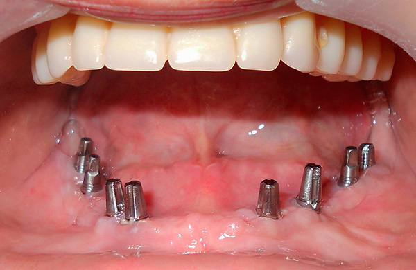 Total installed 8 implants