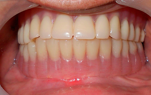 A denture is installed on the implants - as a result, the aesthetics and functionality of the dentition are restored.