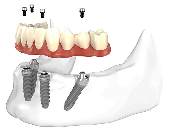The picture schematically shows the prosthetics of the teeth using the All-on-4 method (on four implants).
