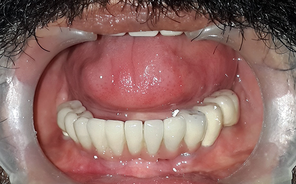 An example of the restoration of the dentition on implants