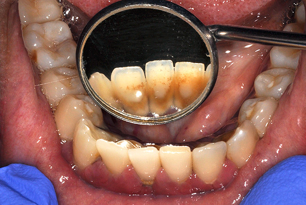 The accumulation of plaque and stone in the future can lead to periodontitis and mobility of not only native teeth, but also implants.