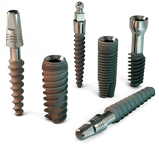The photo shows examples of dental implants.