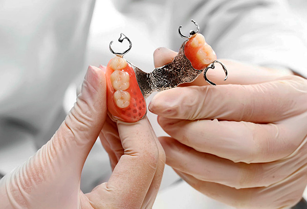 Let's talk about the nuances of the use of clasp dentures in prosthetic teeth on the upper jaw ...