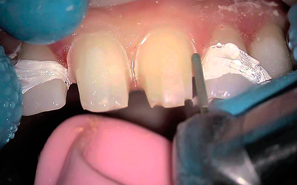 A significant drawback of the clasp denture on the locks is the need for turning the abutment teeth under the crowns.