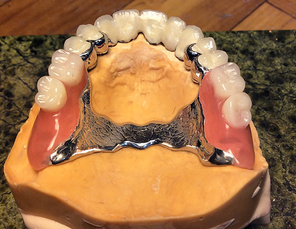 The photo shows an example of a finished partial denture installed on the patient's upper jaw model.