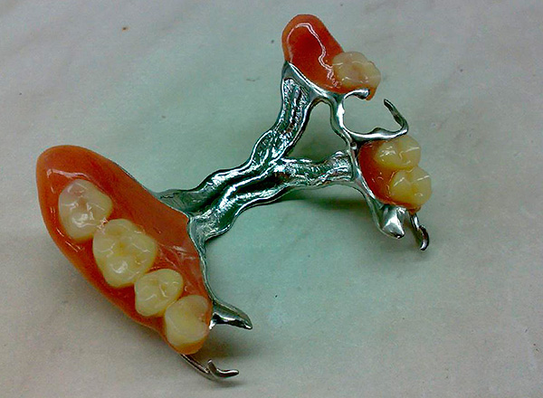 Clasp prosthesis on the upper jaw.