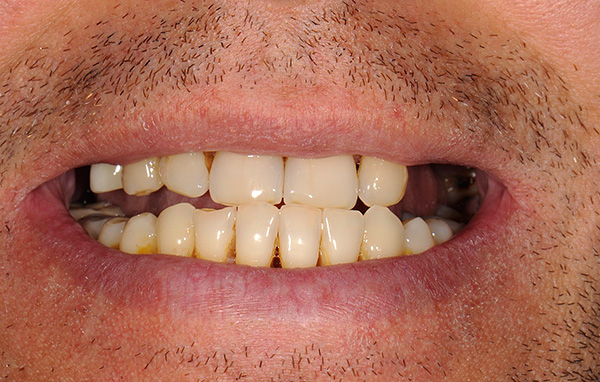 Multiple defects of the dentition (especially end ones) are one of the indications for installing a partial denture.
